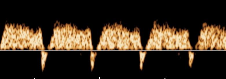 dv_reversed_a-wave.jpg